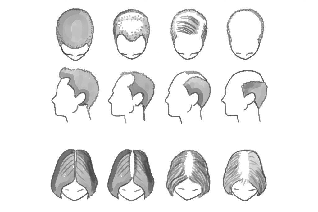 Alopecia Masculina y Femenina